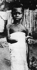 Mutilated Child in the Congo Free State